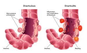 Diverticulosis & Diverticulitis