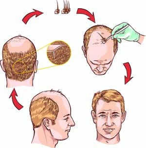 Hair Transplants for Youthful Appearance