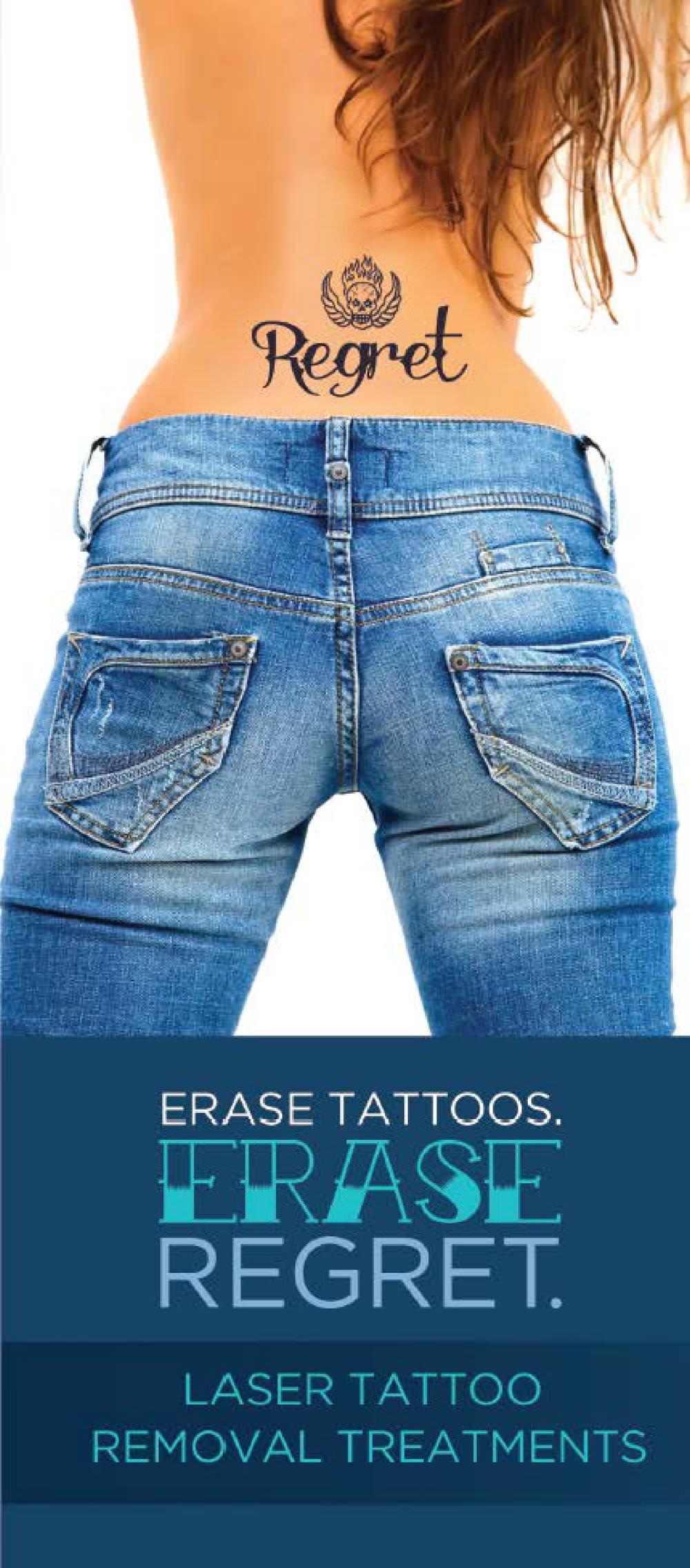 Regret Getting That Tattoo?