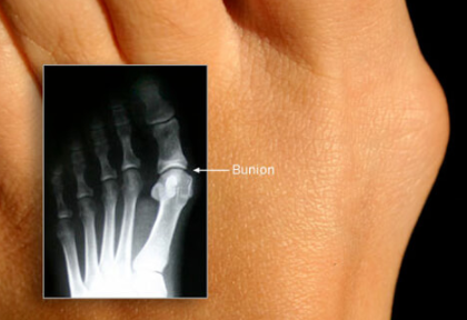 Bunions - ouch…