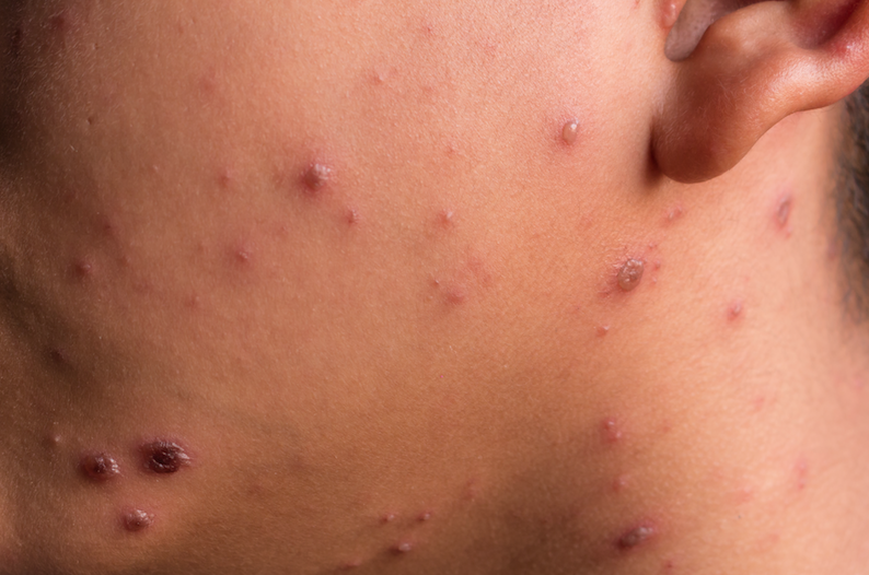 The Chicken Pox – Are You Prepared?