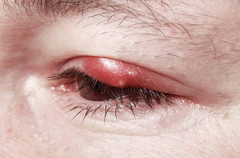 Don't Just Live with a Stye